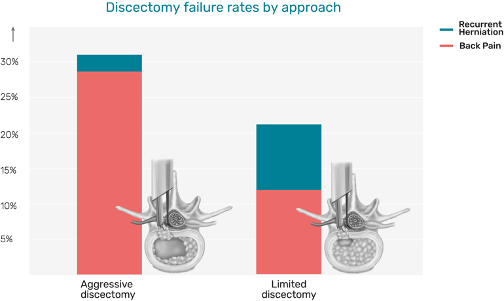 A published meta-analysis shows discectomy failure rates by approach_Barricaid