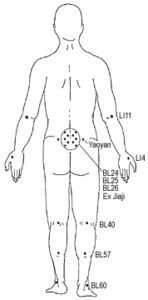 How to Manage Leg Pain Leading Up to Your Discectomy_Acupuncture Diagram