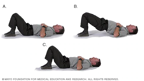 How to Manage Leg Pain Leading Up to Your Discectomy_Bridge exercise_Barricaid