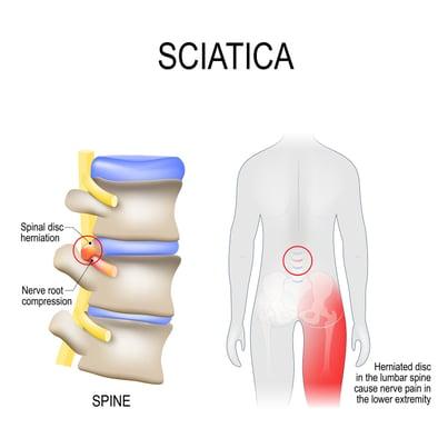 Sciatica with Vertebrae Illustration
